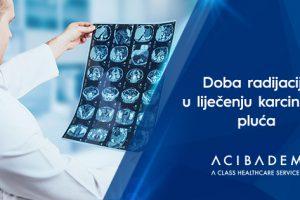 Doba radijacije u liječenju karcinoma pluća