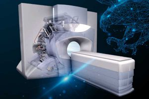 MR Linac – Smart radioterapija
